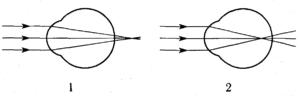схема хода лучей в глазе человека