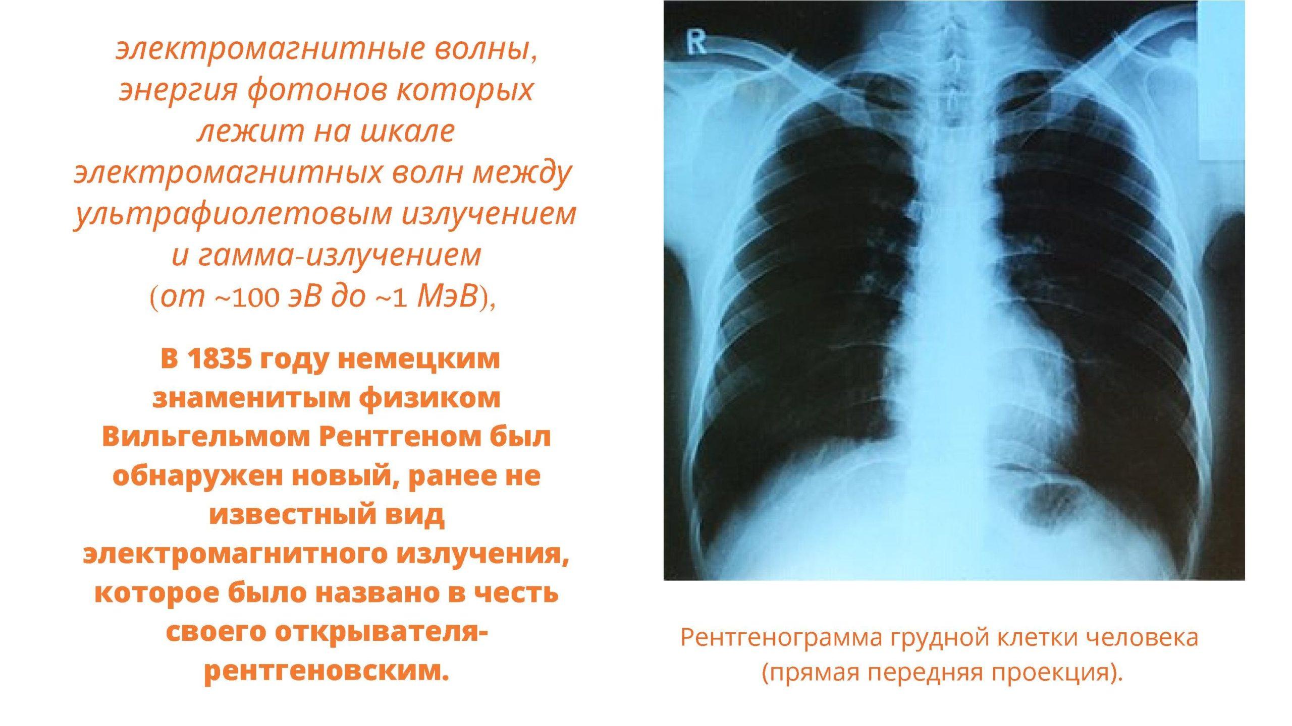 В 1835 году немецким физиком Вильгельмом Рентгеном был обнаружен новый